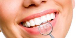 Implantologia dentale in convenzione: una breve guida